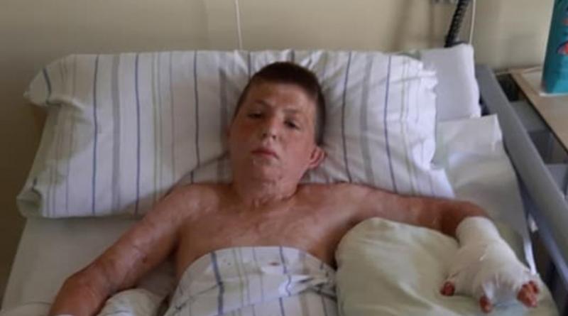 Dječak Meho Beton izdržao dvije nove operacije na obje šake